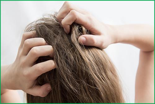 ما الذي يسبب حكة الشعر وما علاجها