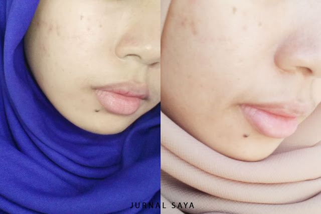 before after pakai avoskin brightening cream