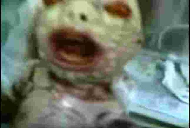طفلة مولودة بوجه ثعبان