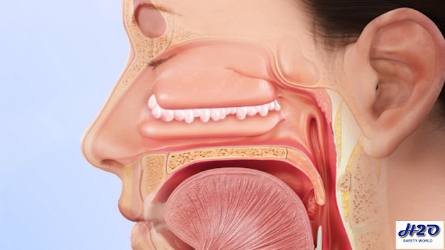 nasal polyps,nasal polyp (disease or medical condition),polyps,how to treat nasal polyps,nasal,nasal polyp removal,how to remove nasal polyps,how to remove nasal polyps at home,how to remove nasal polyps yourself,how to remove nasal polyps naturally,nasal polyp,how to reduce nasal polyps,how to cure nasal polyps,how to get rid of nasal polyps,how to remove polyps in nose