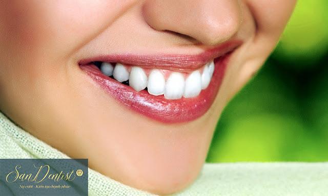 Điều trị cười hở lợi hiệu quả chỉ sau 1 lần thực hiện duy nhất