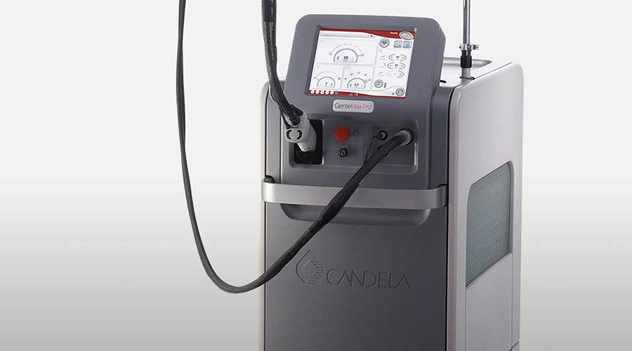 how candela gentle max pro works benefits advantages laser hair removal machine methods side effects risks