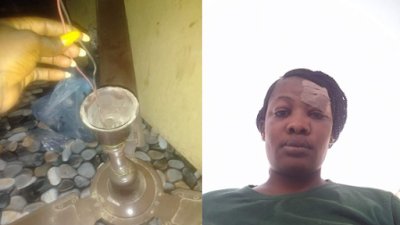 Woman Narrowly Escapes Blindness After Her Ceiling Fan Fell On Her Face (Photos)
