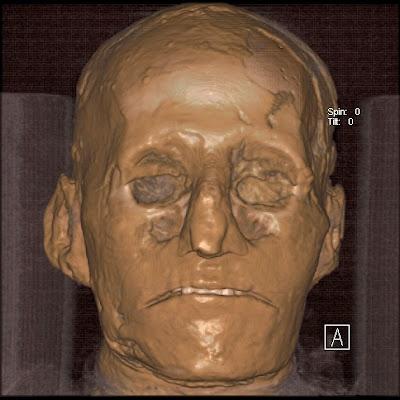 Ramses ii mummy gia - 3 5