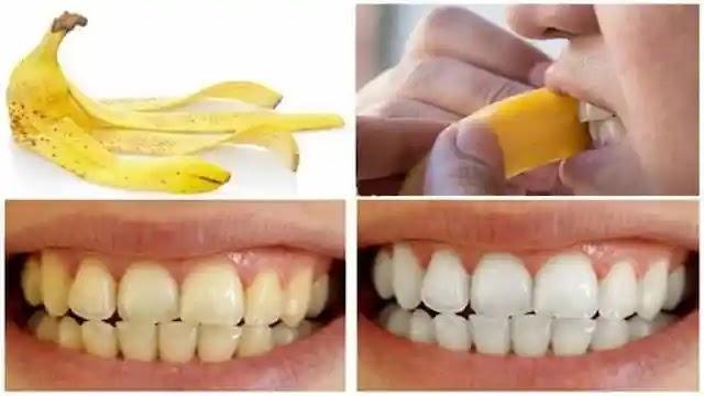 قشر الموز لتبييض الأسنان والتخلص من الاسنان الصفراء .