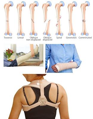 Cara Untuk Mengobati Fraktur Tulang/Patah Tulang Secara Efektif Dan Cepat Sampai Tuntas