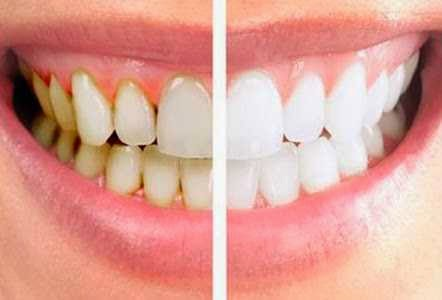 Cara Memutihkan Gigi Kuning Secara Cepat Dunia Ilmu Pengetahuan