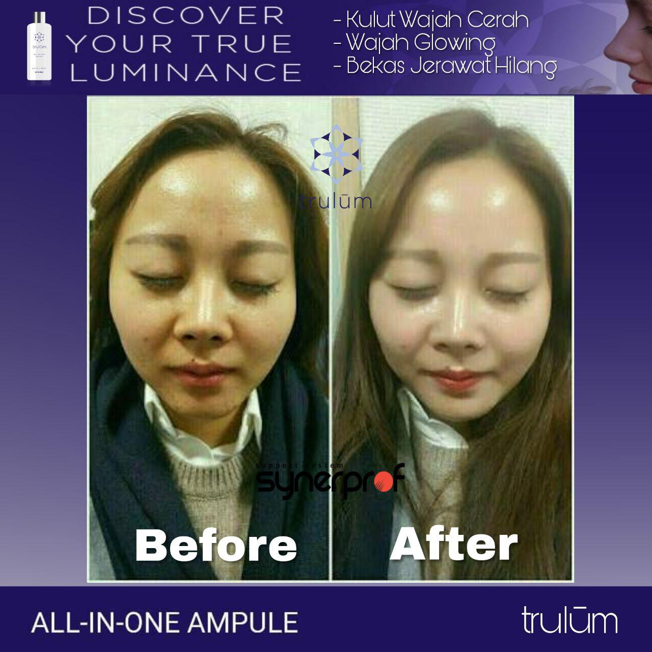 Jual Trulum All In One Ampoule Di Gomo WA: 08112338376