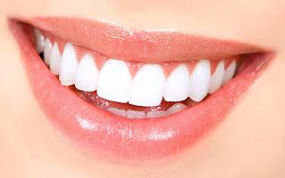 تفتيح الاسنان
