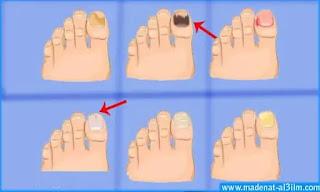 علاج فطريات اظافر القدم