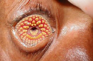 Penyakit Kulit Bolong Trypophobia, Penyebab & Cara Mengatasi