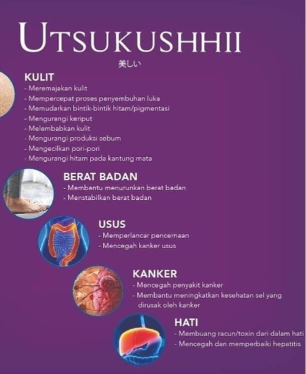 Jual SOP Subarashii Vs Utsukushii - Obat Alami Diabetes, Info di Morowali. SOP 100 Boleh Untuk Ibu Hamil.