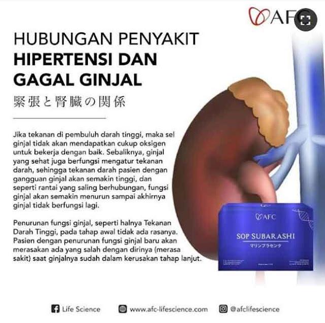 Jual SOP Subarashi untuk Stroke - Obat Alami Diabetes, Jual di Timor Tengah Utara. Beda Utsukushii dan SOP 100.