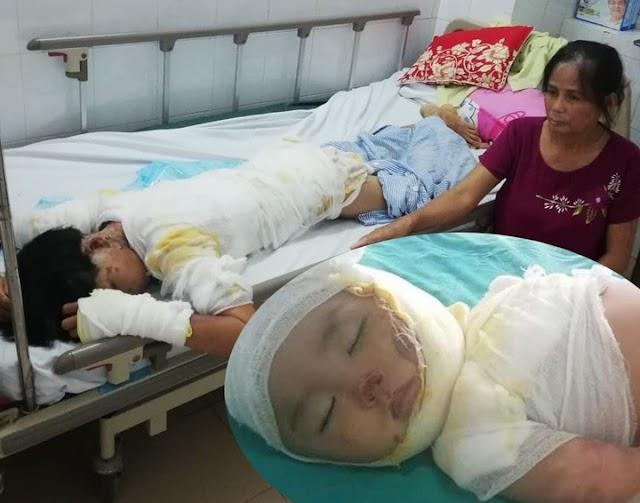 Thảm cảnh vợ bị chồng tẩm xăng đốt lúc nửa đêm chỉ vì con quấy khóc: Con trai 2 tuổi cũng bỏng nặng