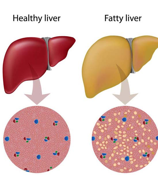 Besides, purifying blood the liver performs 500 other functions. That's why the liver inflammation puts bad effects on our health. The inflammation of liver is called Hepatitis. Generally, this disease takes place due to virus.
