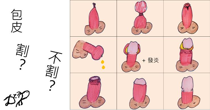 哪些狀況需要割包皮呢?