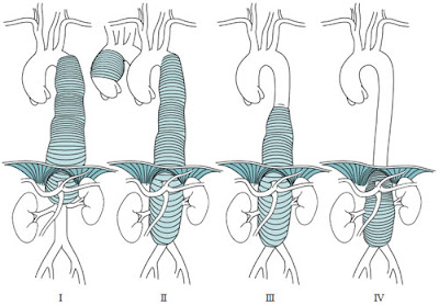 Crawford classification system for aortic aneurysms