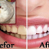 Whiten Your Teeth in Just 3 Minutes with Baking Soda and Lemon Mixture