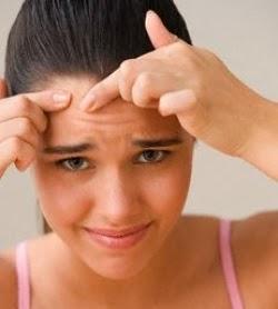 Cara Mencegah Jerawat pada Kulit Wajah dengan Alami