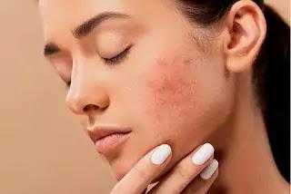 home remedies for pimples in hindi, Home remedies for face glow, Home remedies for face glow in hindi me, home remedies for pimples on skin, pimples ke liye gharelu upay, pimple ke daag kaise mitaye, pimple hatane ki cream, how to remove pimples from face naturally in one day at home in hindi, pimples ka ilaj in hindi, how to remove pimples in hindi at home, pimple treatment in hindi for girl, face se pimple kaise hataye in hindi, pimples ke liye gharelu upay, pimples ka ilaj in hindi, pimple ke daag kaise mitaye, pimple hatane ki cream, pimple treatment in hindi for girl, how to remove pimples in hindi at home, face se pimple kaise hataye in hindi, how to remove pimples from face naturally in one day at home in hindi, top 10 home remedies for pimples, how to remove pimples overnight, how to remove pimples naturally and permanently, home remedies for pimples for oily skin, home remedies for acne overnight, best home remedy for acne overnight, how to remove pimples naturally and permanently in one day, home remedies for pimples and blackheads for oily skin, how to remove pimples naturally and permanently in one day at home, how to remove pimples in one day, how to remove pimples overnight, how to remove pimples naturally and permanently in one day in hindi, pimples on face removal tips, how to get rid of pimples in 5 minutes, how to remove pimples from face, how to remove pimples at home, keel muhase ka gharelu upchar, kil muhase ke gharelu upay, pimple hatane ka tarika, how to remove keel from face in hindi, kil muhase hatane ke gharelu upay, keel muhase ki medicine, pimples ka ilaj in hindi, kil muhase ko kaise hataye, keel muhase ka gharelu upchar, kil muhase ke gharelu upay, pimple hatane ka tarika how to remove keel from face in hindi, muhase ke daag hatane ke upay in hindi, keel muhase ki medicine, kil muhase hatane ke gharelu upay, chehre ke muhase ki dawa,
