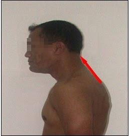 Leher menjulur ke depan (Head Posture)