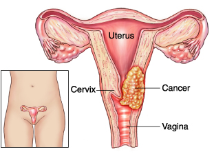 Cervical cancer and it symptoms