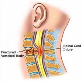 spinal cord injury treatment surgery