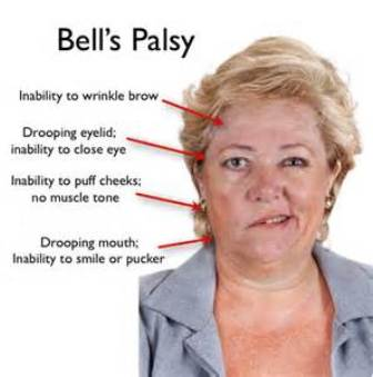 diagnosis bells palsy