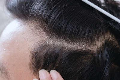 Saçta kepek nedir, neden olur, Saçta kepek nasıl geçer? Kepekten nasıl kurtulunur ?