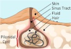Gluteal Sinus