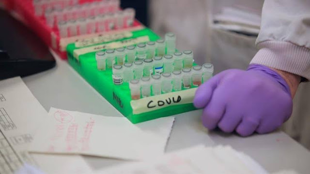 Relawan Alami Peradangan Langka, Uji Coba Vaksin Covid-19 Dihentikan Sementara