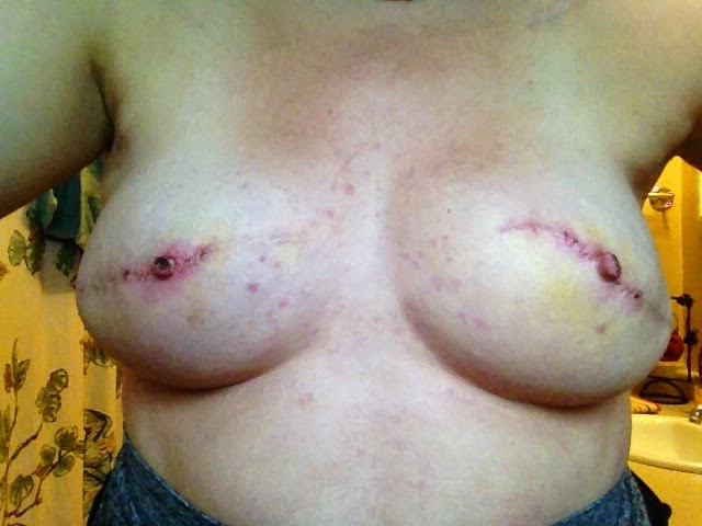 nipple reconstruction, breast cancer, survivor, nipple, reconstruction, surgery, procedure