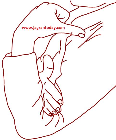 ढोंढी डिगने के लक्षण और परिणाम