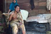 Hendra Saputra, Alumni Dayah Al- Munawarah Kuta Krueng Butuh Uluran Tangan Orang Baik Untuk Biaya Berobat