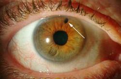 Ciri Ciri Mata Glaukoma dan Pengobatannya