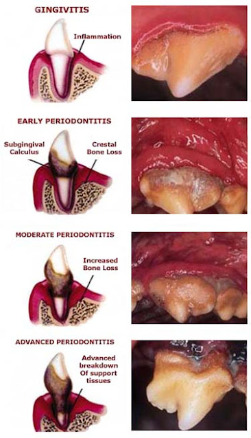 Different stages of periodontal disease in dogs