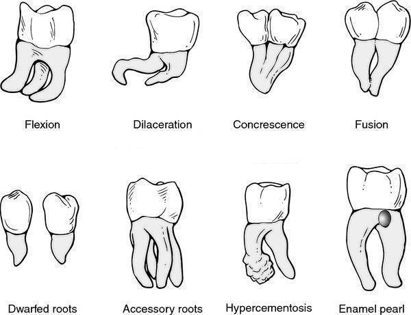 Dentistry and Medicine: Developmental anomalies of tooth