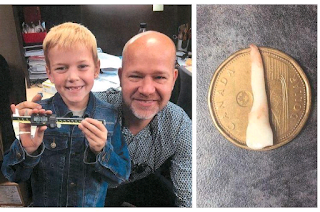 Canadian boy's 1.02-inch baby tooth declared a world record
