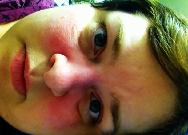 The Quirky Moose: What It is Like to Have Lupus - My Story