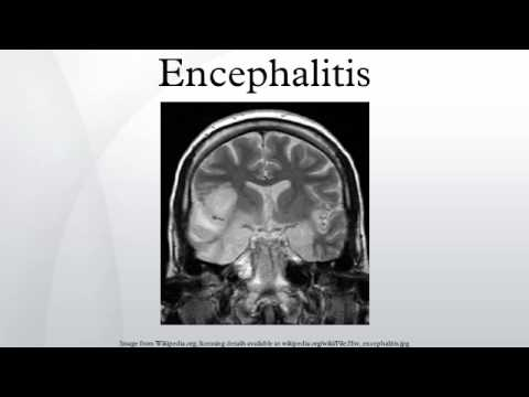 What is encephalitis  (chamki bukhaar) ? ,www.arvbiotech.com