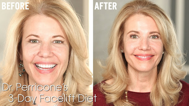The Facelift Diet of Dr. Perricone