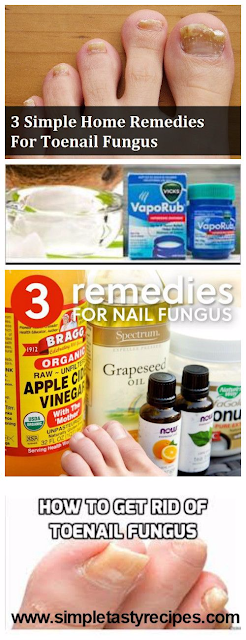 Simple Home Remedies Nail Psoriasis
