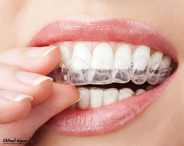 كيف تحافظ على أسنانك بيضاء بعد التبييض؟