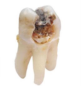 pourriture dentaire causes et traitement