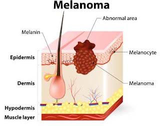 remedios caseros para melanoma