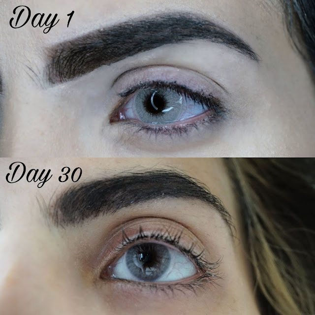 BEFORE AND AFTER 30 DAY CHALLENGE WITH THE XLASH EYELASH SERUM