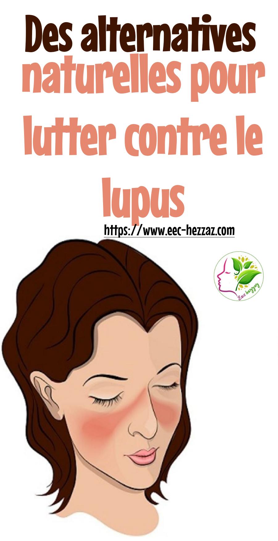 Des alternatives naturelles pour lutter contre le lupus