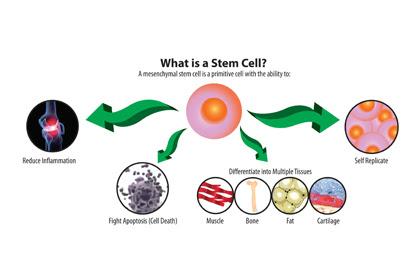 Suntik Stem Cell di Indonesia