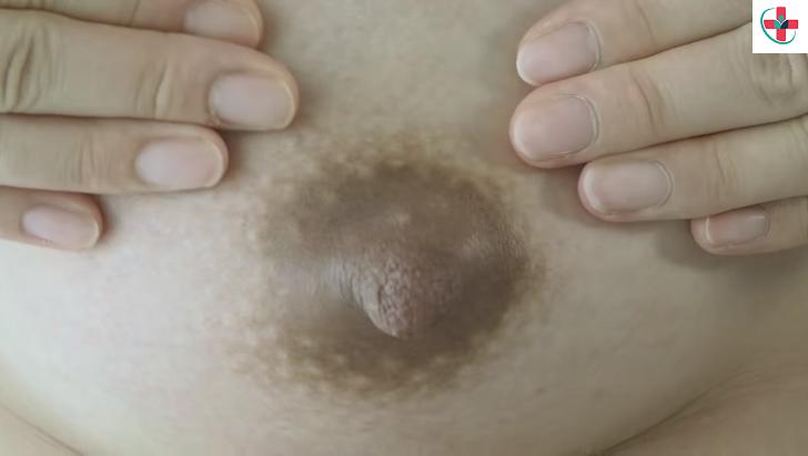 The Nipples.