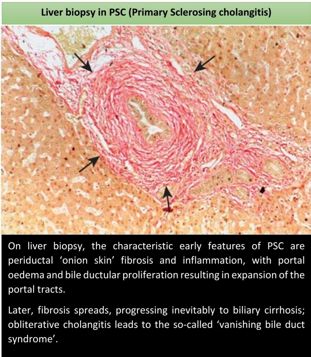 Liver biopsy in primary Sclerosing cholangitis